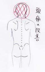 zutsu